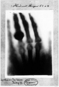 are emfs from x-rays dangerous