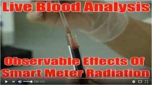 smart meter radiation live blood analysis