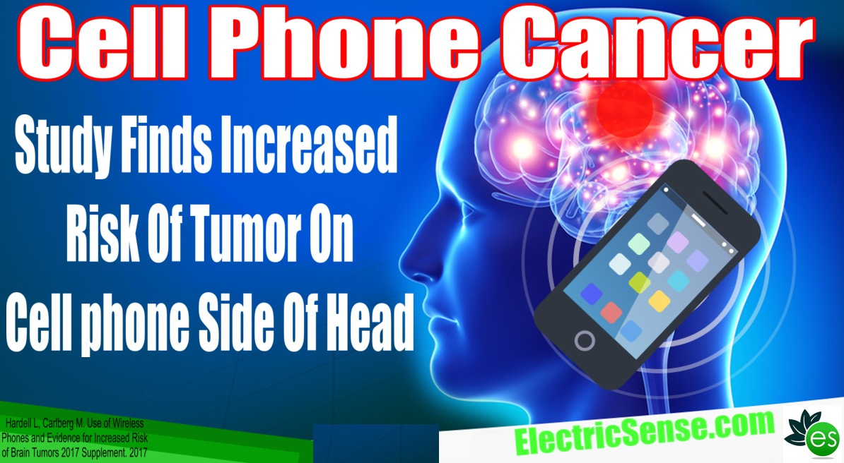 cell phone brain cancer same side tumor