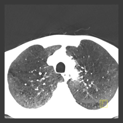 CT Scan radiation damaged lungs called Radiation Pneumonitis